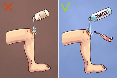 first-aid-methods1 image